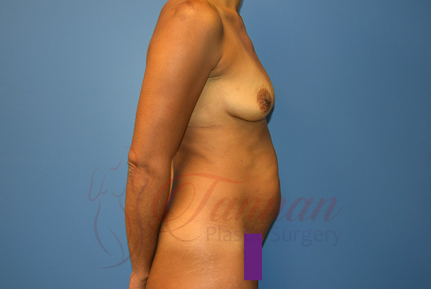 Mommy-Makeover-Before-0402-Tannan-Plastic-Surgery
