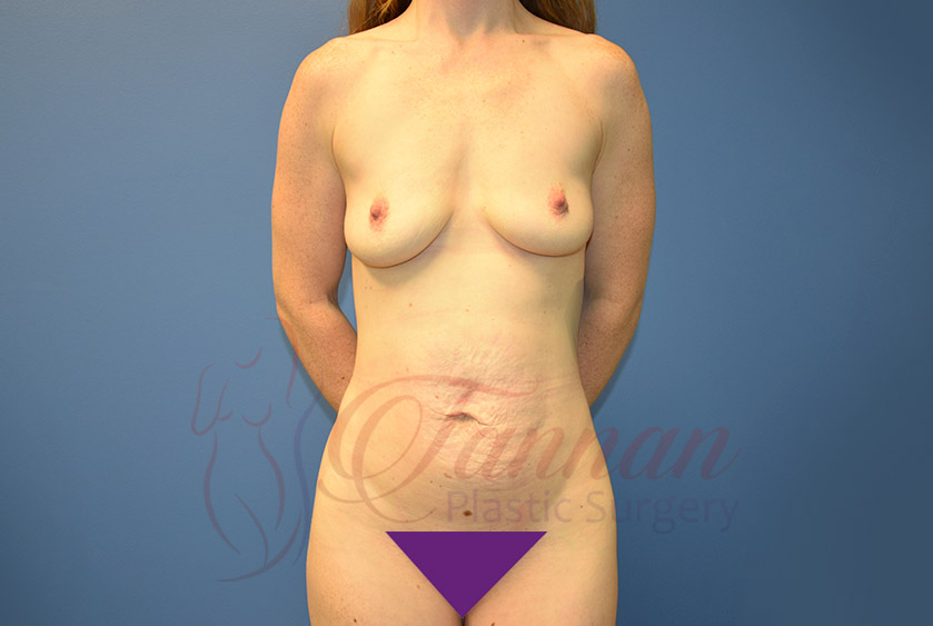Mommy-Makeover-Before-0501-Tannan-Plastic-Surgery