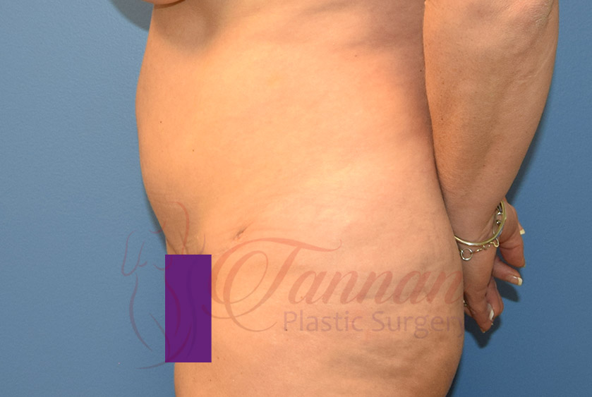 Tummy-Tuck-After-0703-Tannan-Plastic-Surgery