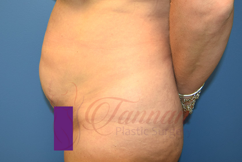 Tummy-Tuck-Before-0703-Tannan-Plastic-Surgery