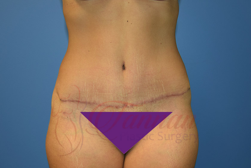 Tummy-Tuck-After-0101-Tannan-Plastic-Surgery