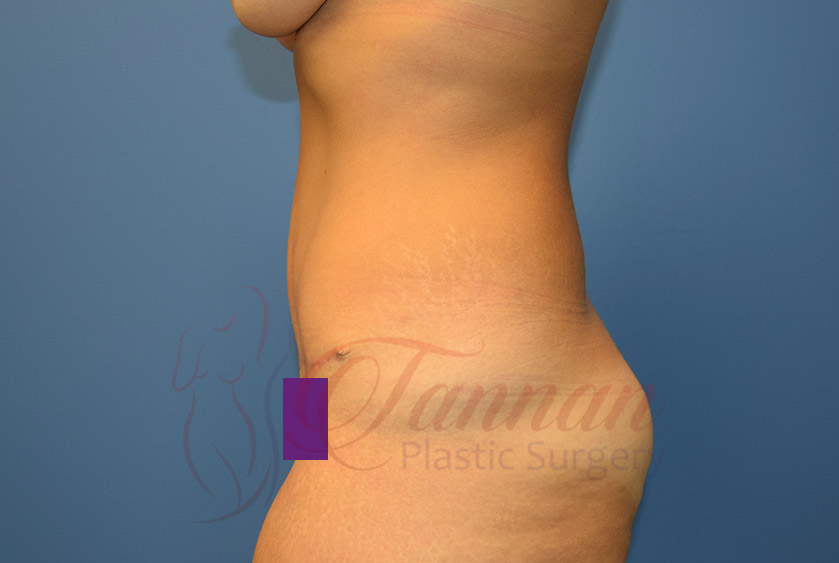Tummy-Tuck-After-0102-Tannan-Plastic-Surgery