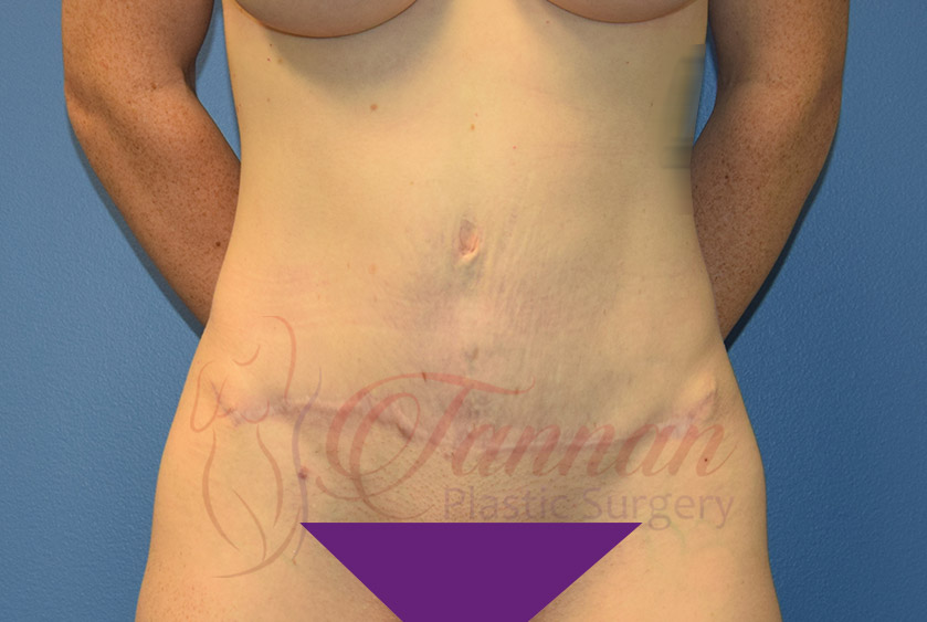 Tummy-Tuck-After-0201-Tannan-Plastic-Surgery