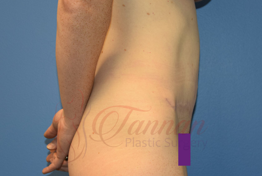 Tummy-Tuck-After-0202-Tannan-Plastic-Surgery