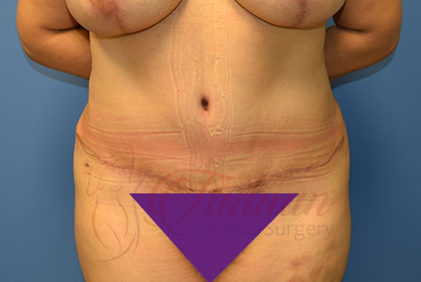 Tummy-Tuck-After-0301-Tannan-Plastic-Surgery