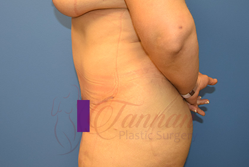 Tummy-Tuck-After-0302-Tannan-Plastic-Surgery
