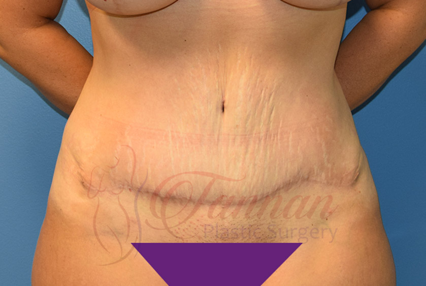 Tummy-Tuck-After-0401-Tannan-Plastic-Surgery