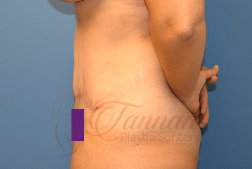 Tummy-Tuck-After-0402-Tannan-Plastic-Surgery