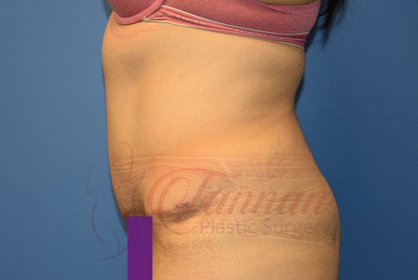 Tummy-Tuck-After-0602-Tannan-Plastic-Surgery