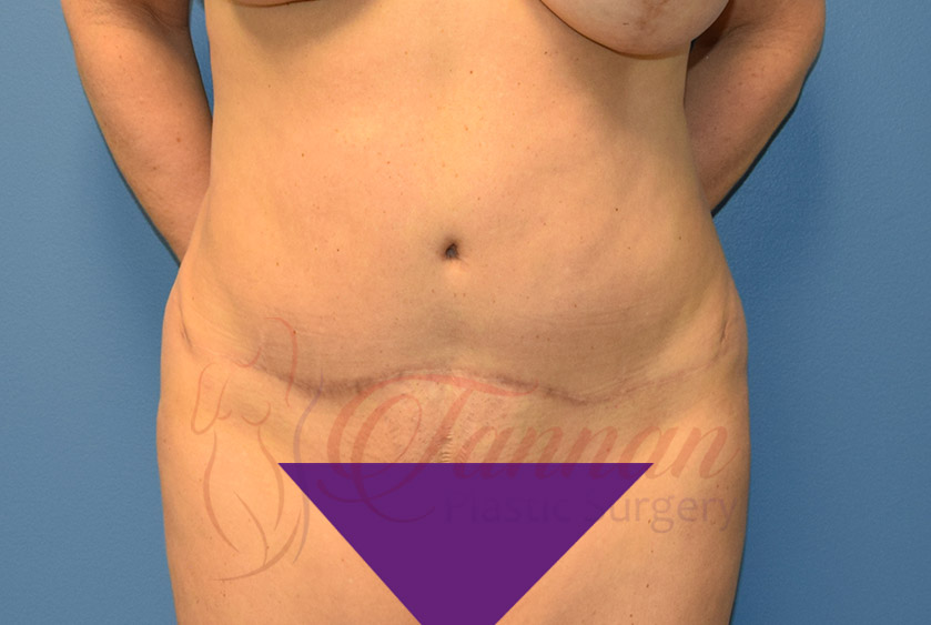 Tummy-Tuck-After-0701-Tannan-Plastic-Surgery