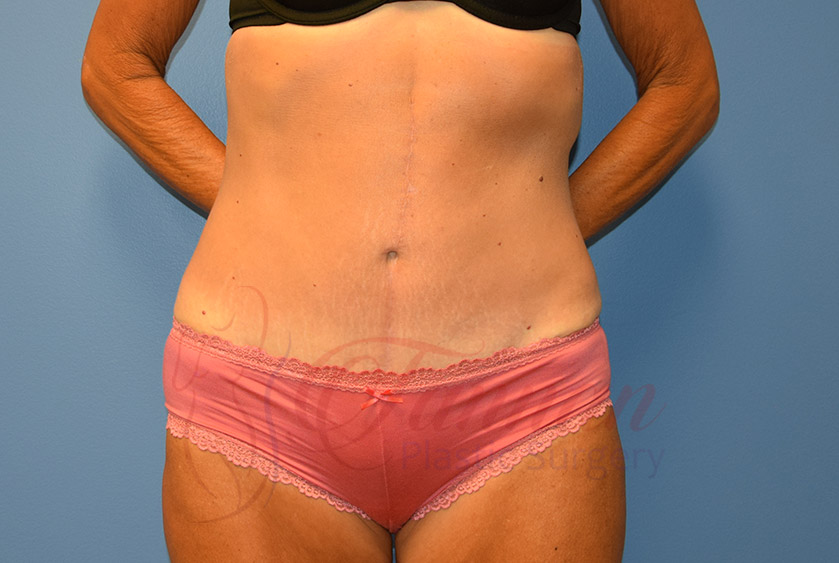 Tummy-Tuck-After-0801-Tannan-Plastic-Surgery