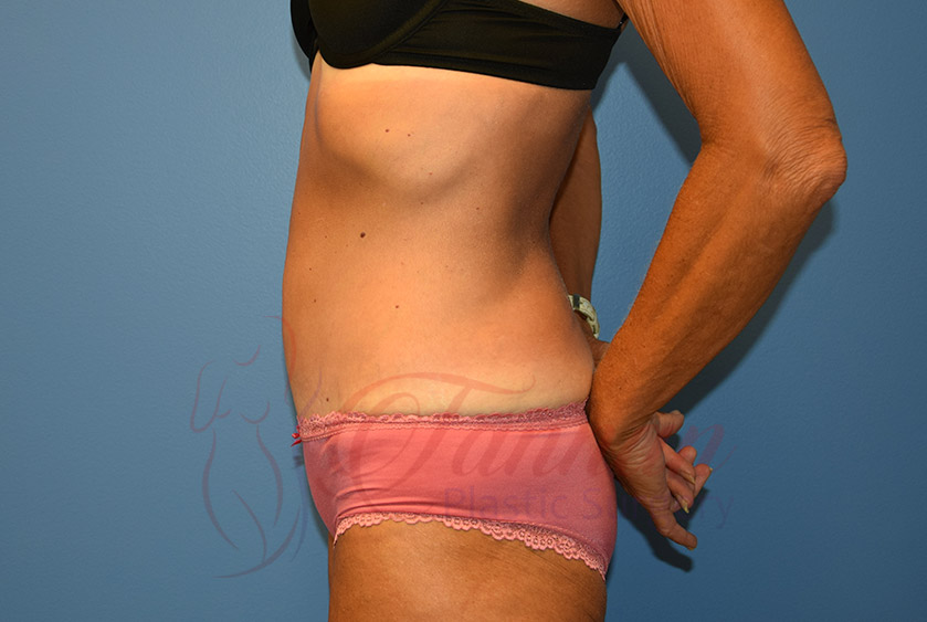 Tummy-Tuck-After-0802-Tannan-Plastic-Surgery