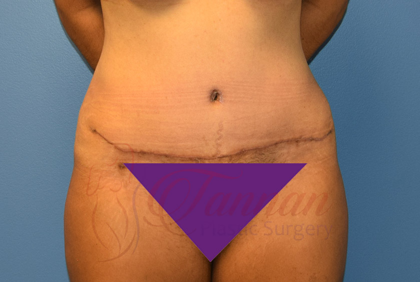Tummy-Tuck-After-0901-Tannan-Plastic-Surgery
