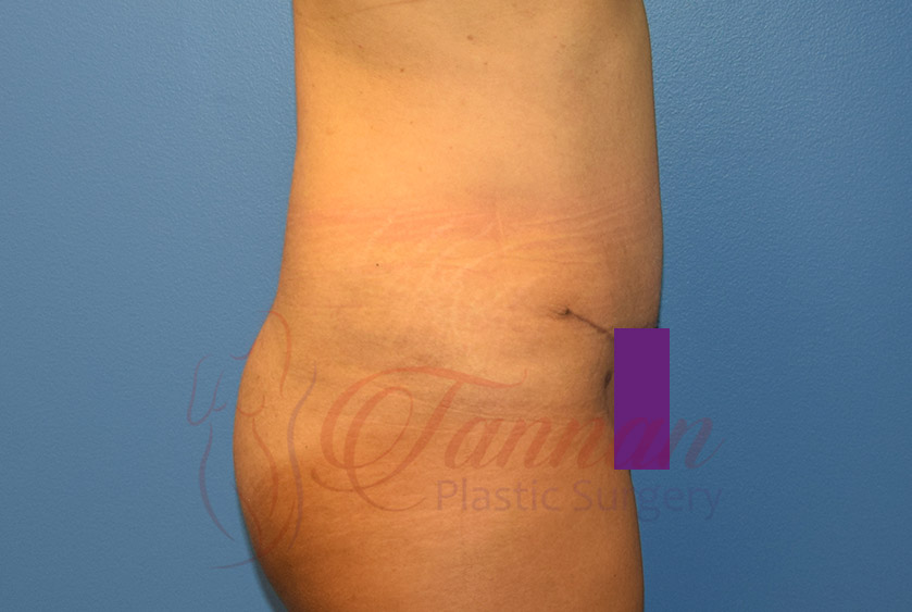 Tummy-Tuck-After-0902-Tannan-Plastic-Surgery