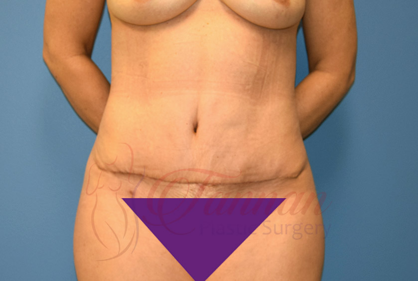 Tummy-Tuck-After-1001-Tannan-Plastic-Surgery