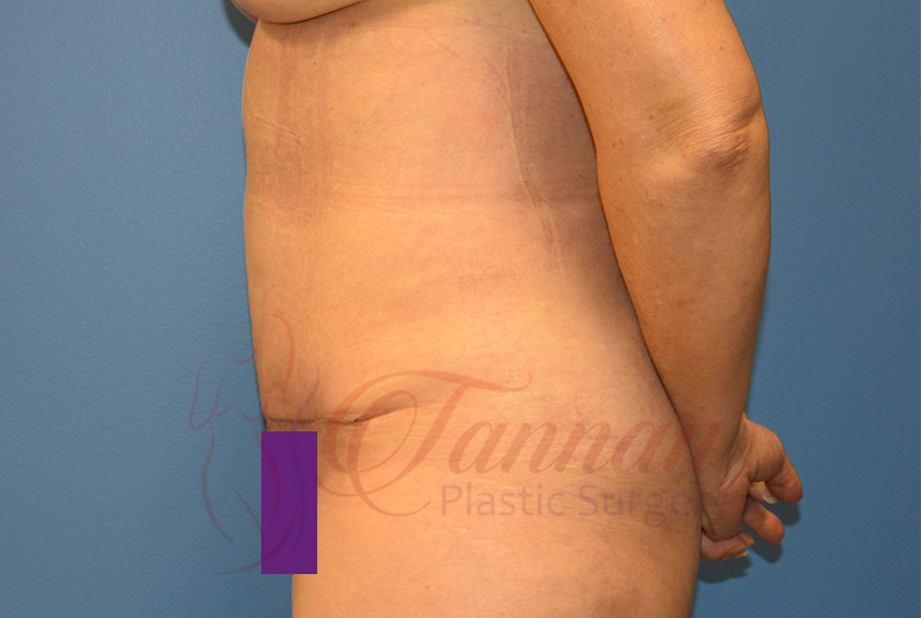 Tummy-Tuck-After-1002-Tannan-Plastic-Surgery