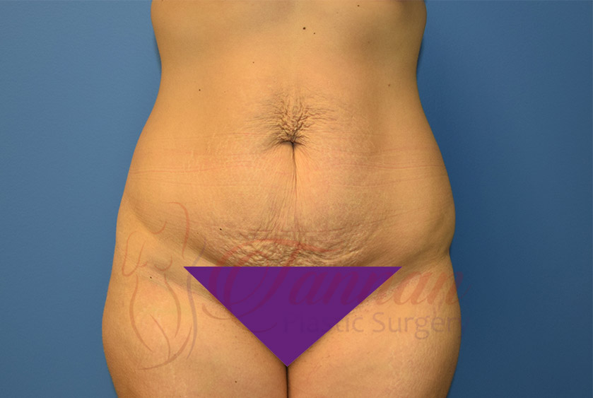 Tummy-Tuck-Before-0101-Tannan-Plastic-Surgery