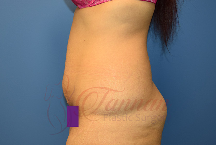 Tummy-Tuck-Before-0102-Tannan-Plastic-Surgery