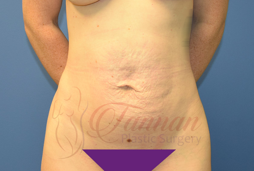 Tummy-Tuck-Before-0201-Tannan-Plastic-Surgery