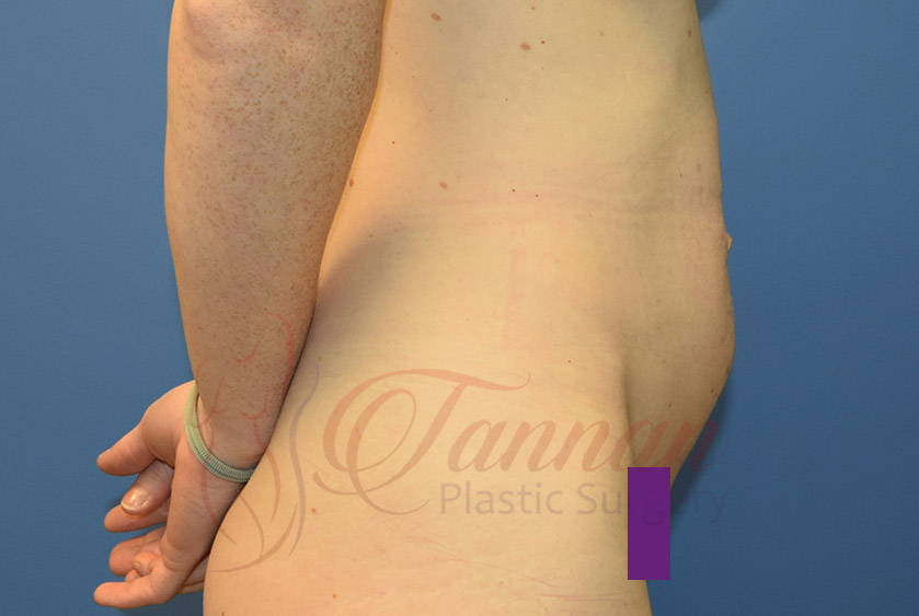 Tummy-Tuck-Before-0202-Tannan-Plastic-Surgery