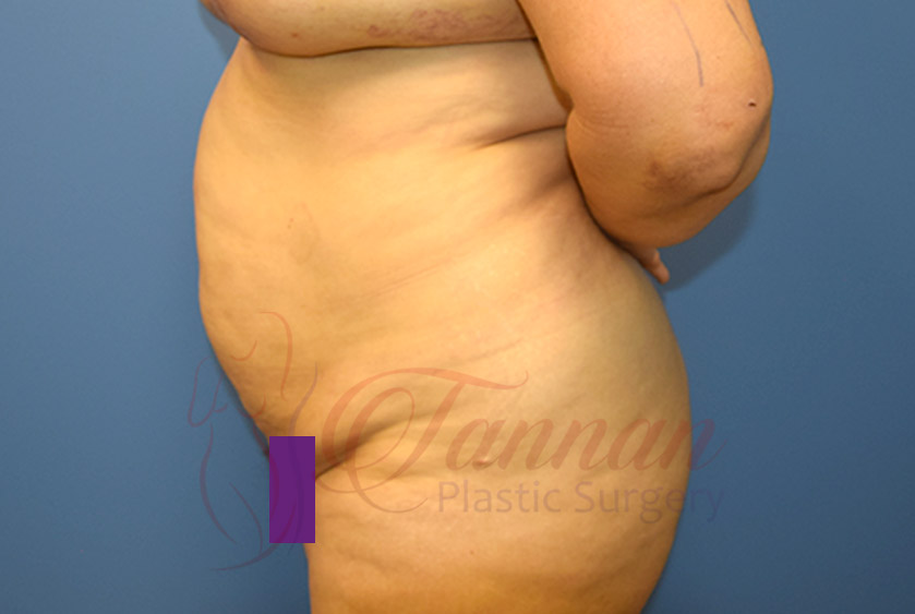 Tummy-Tuck-Before-0302-Tannan-Plastic-Surgery