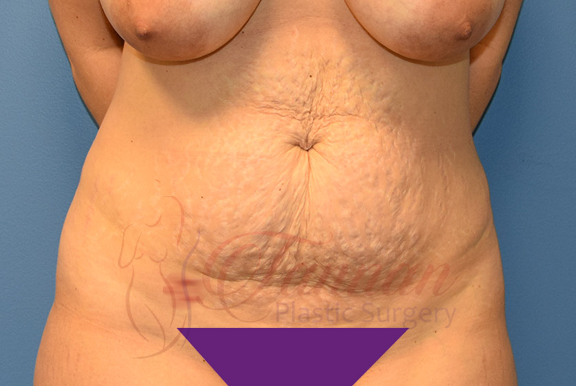 Tummy-Tuck-Before-0401-Tannan-Plastic-Surgery