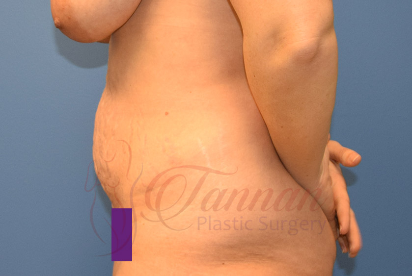 Tummy-Tuck-Before-0402-Tannan-Plastic-Surgery