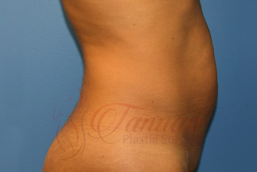 Tummy-Tuck-Before-0502-Tannan-Plastic-Surgery