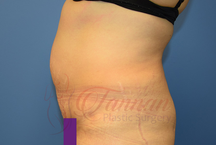 Tummy-Tuck-Before-0602-Tannan-Plastic-Surgery