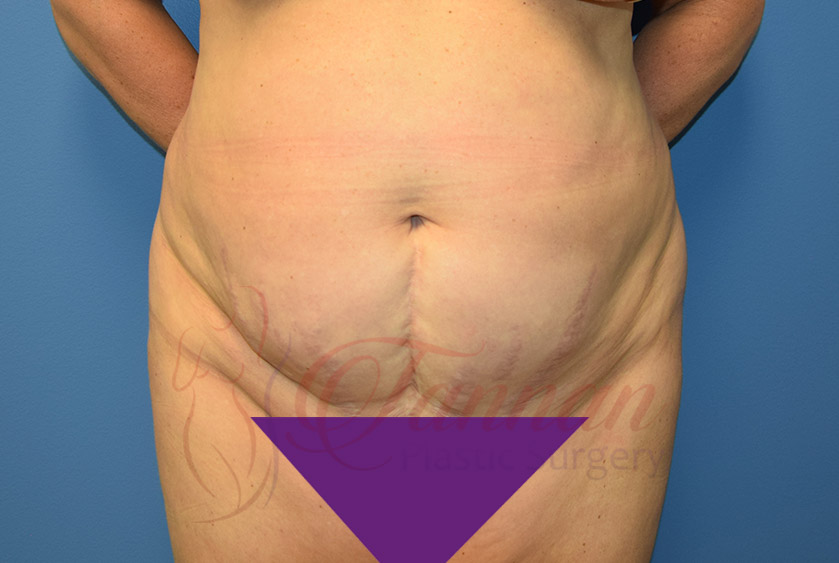 Tummy-Tuck-Before-0701-Tannan-Plastic-Surgery