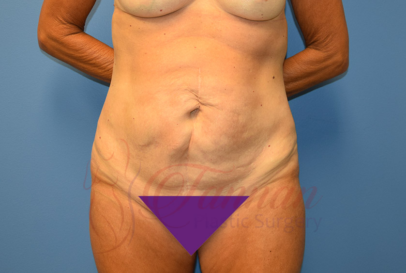 Tummy-Tuck-Before-0801-Tannan-Plastic-Surgery