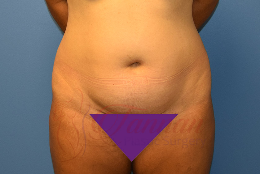 Tummy-Tuck-Before-0901-Tannan-Plastic-Surgery