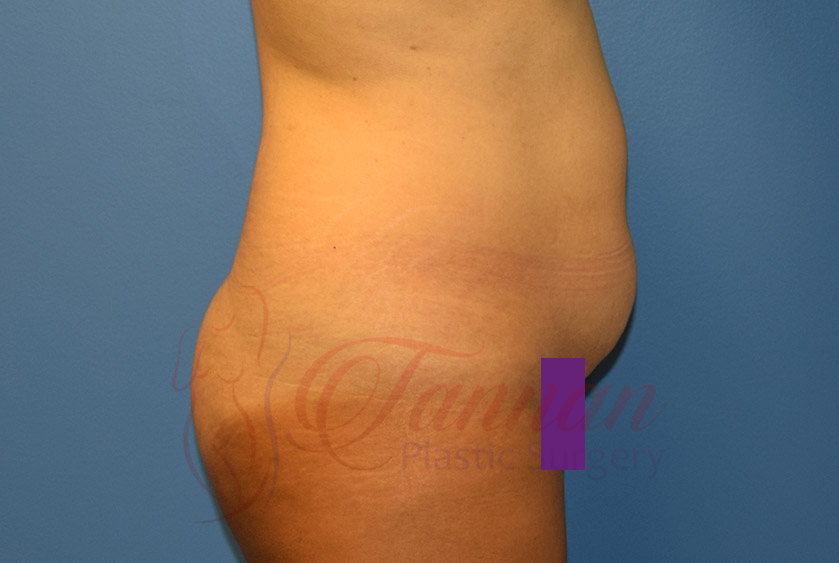 Tummy-Tuck-Before-0902-Tannan-Plastic-Surgery