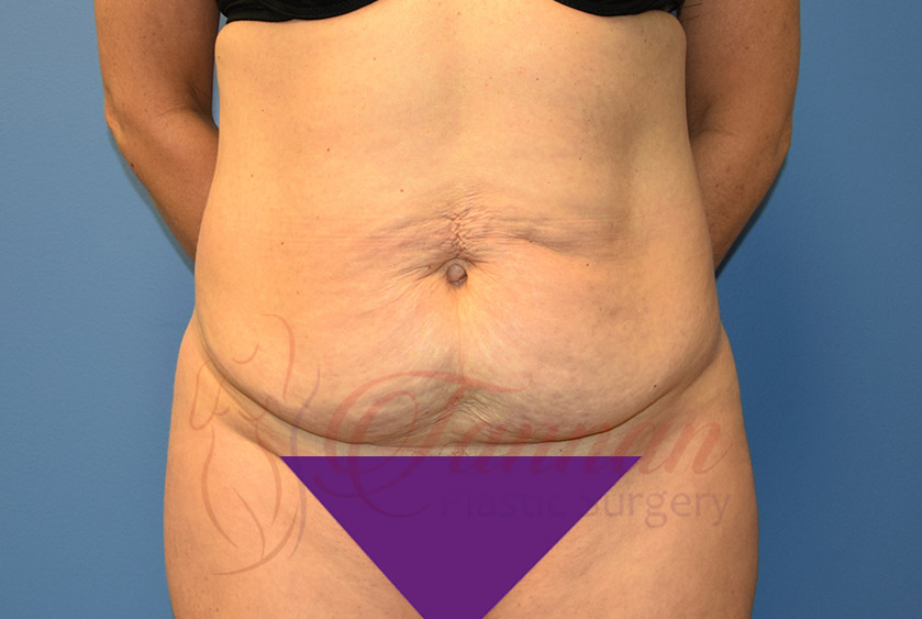 Tummy-Tuck-Before-1001-Tannan-Plastic-Surgery
