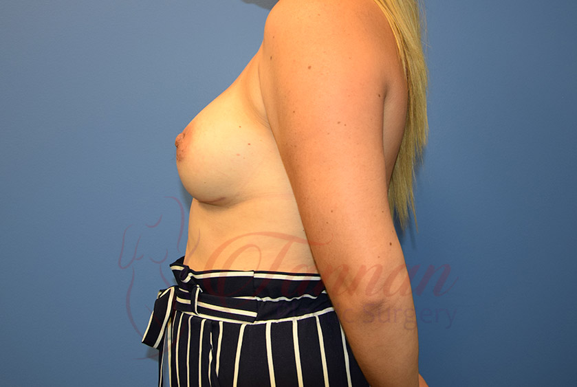 Breast-Augmentation-After-0602-Tannan-Plastic-Surgery