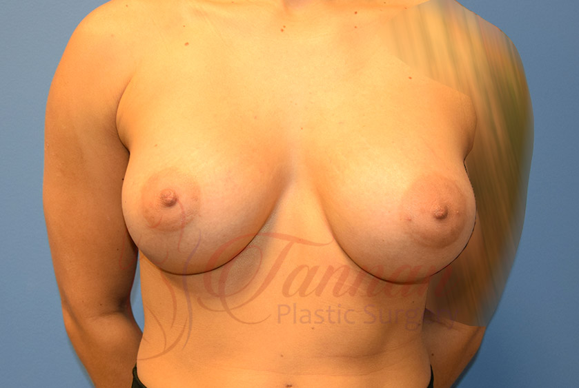 Breast-Augmentation-After-1701-Tannan-Plastic-Surgery