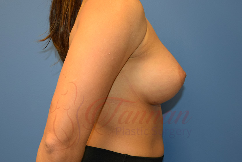 Breast-Augmentation-After-1702-Tannan-Plastic-Surgery