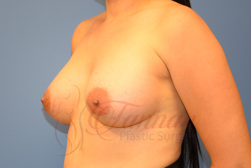Breast-Augmentation-After-1802-Tannan-Plastic-Surgery