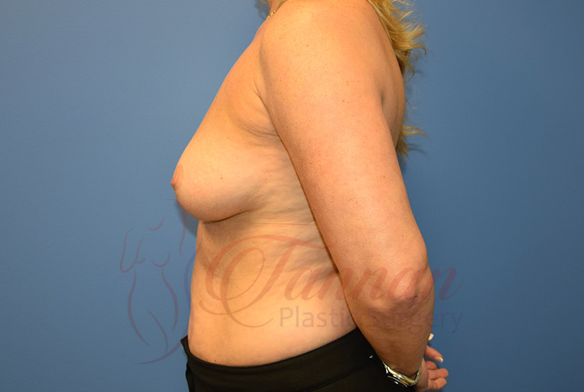 Breast-Augmentation-Before-0502-Tannan-Plastic-Surgery