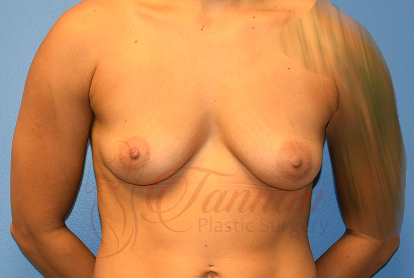Breast-Augmentation-Before-1701-Tannan-Plastic-Surgery
