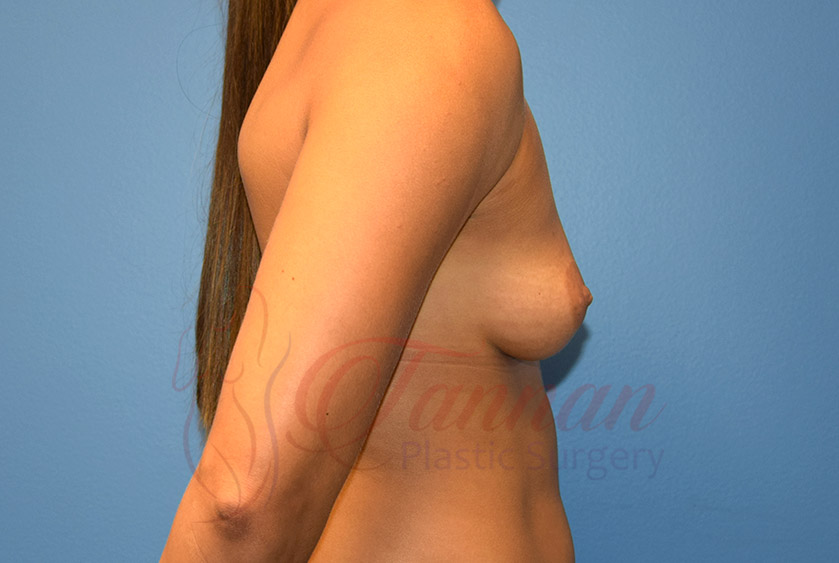 Breast-Augmentation-Before-1702-Tannan-Plastic-Surgery
