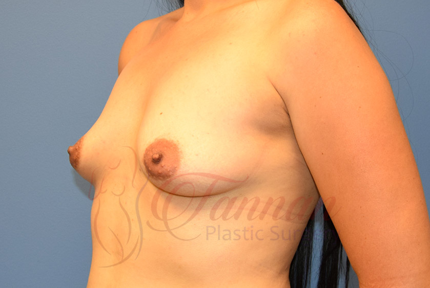 Breast-Augmentation-Before-1802-Tannan-Plastic-Surgery