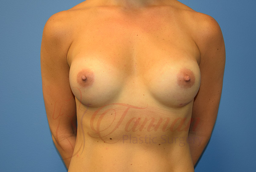 Breast-Augmentation-After-1901-Tannan-Plastic-Surgery