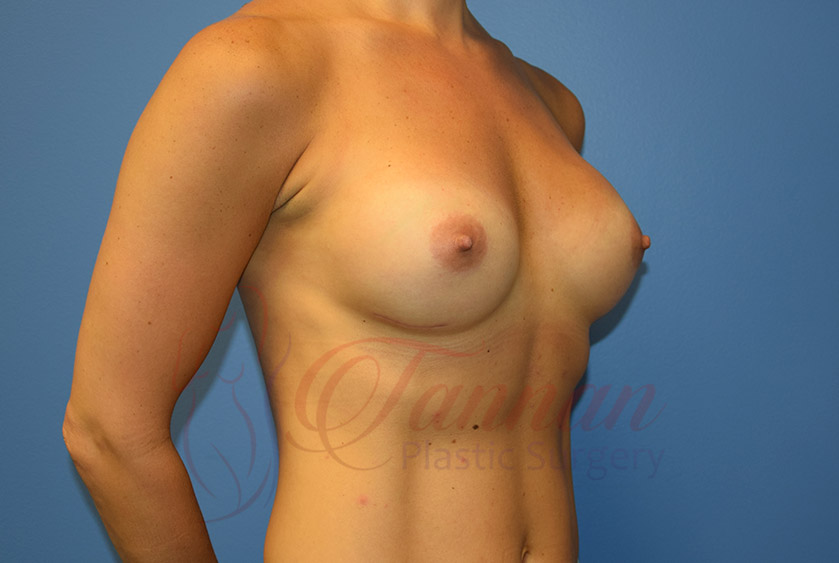 Breast-Augmentation-After-1902-Tannan-Plastic-Surgery