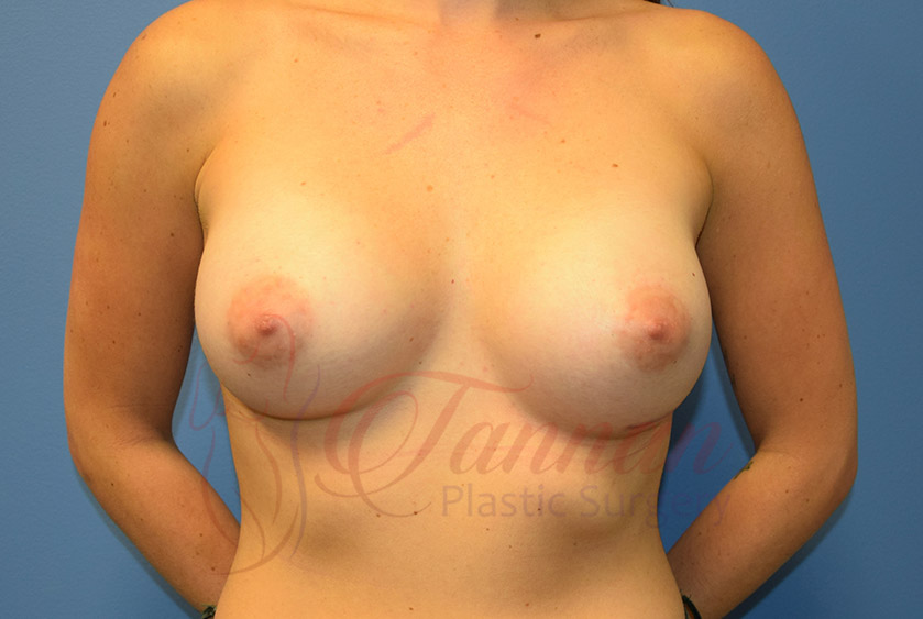 Breast-Augmentation-After-2001-Tannan-Plastic-Surgery