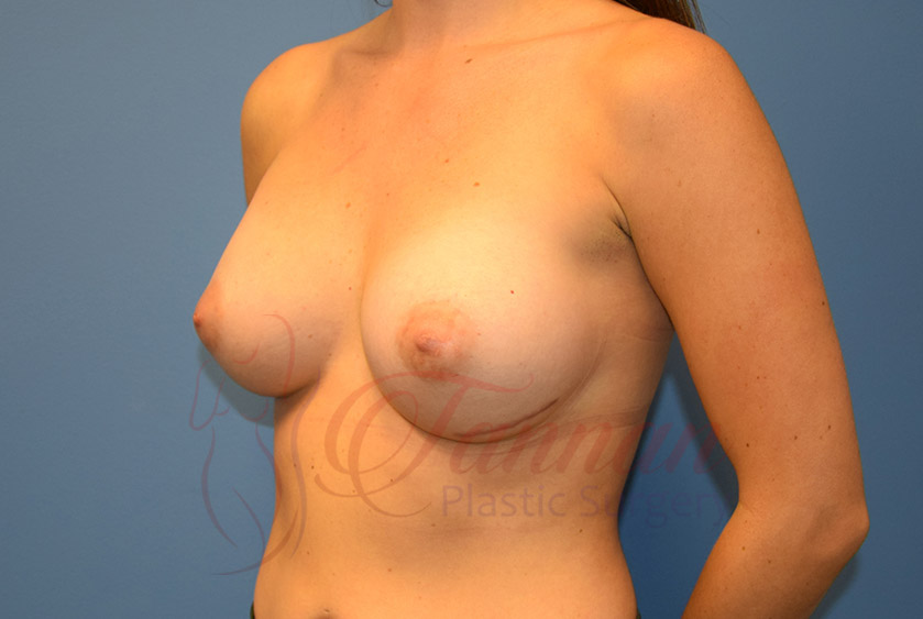 Breast-Augmentation-After-2002-Tannan-Plastic-Surgery
