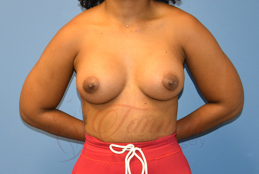 Breast-Augmentation-After-2101-Tannan-Plastic-Surgery