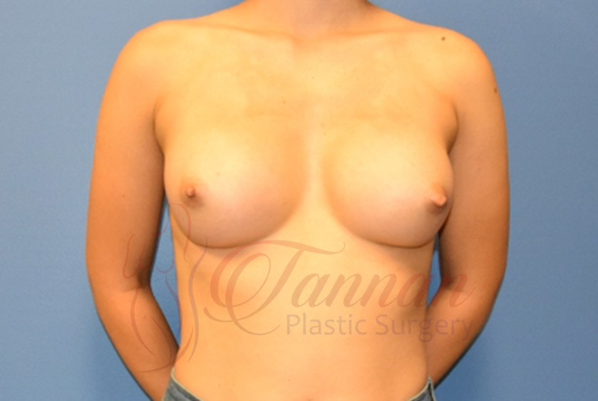 Breast-Augmentation-After-2201-Tannan-Plastic-Surgery