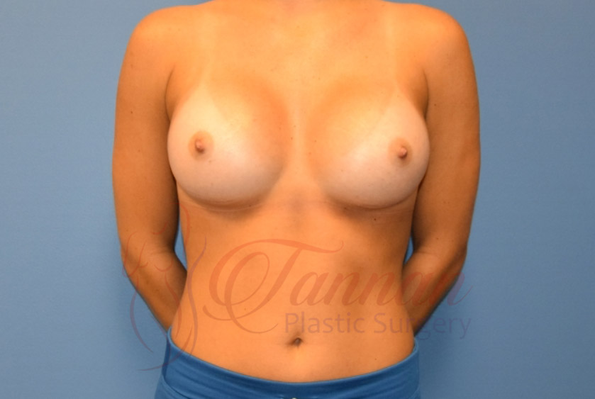 Breast-Augmentation-After-2401-Tannan-Plastic-Surgery