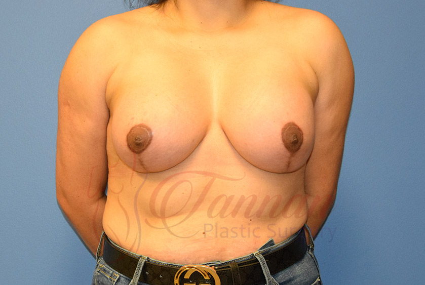 Breast-Augmentation-After-2501-Tannan-Plastic-Surgery